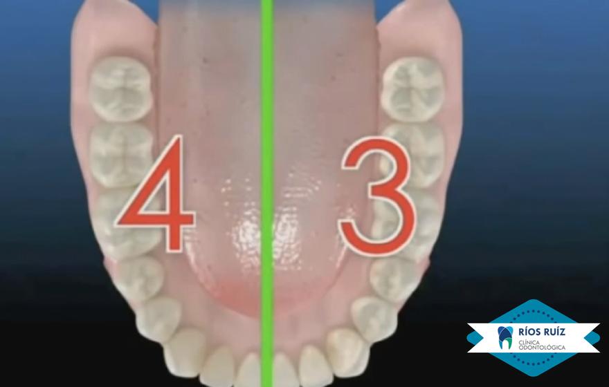 Cuadrantes 3 y 4 (Inferiores Dentarios)