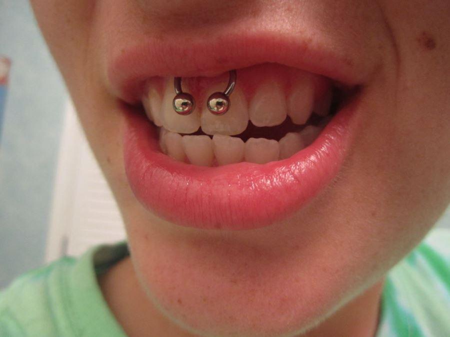 las lesiones de la boca labio y lengua: