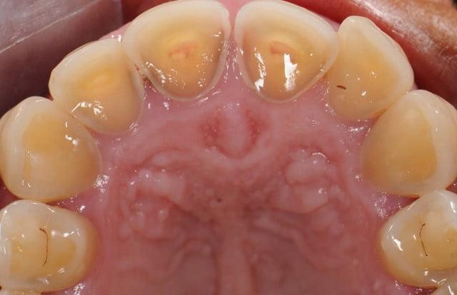 Resultado de imagen de perdida de esmalte dental